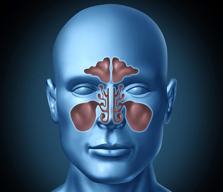 Sinusitis - Indoor Air Quality